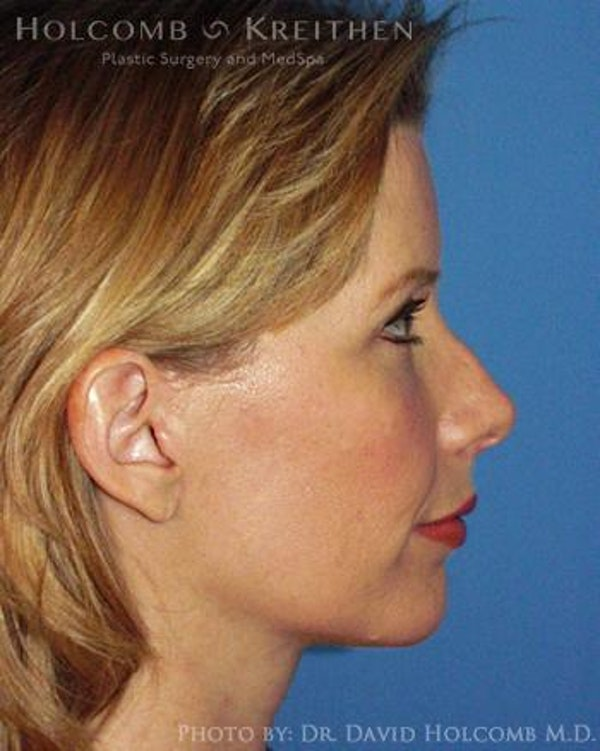 Neck Contouring Gallery - Patient 6279357 - Image 6