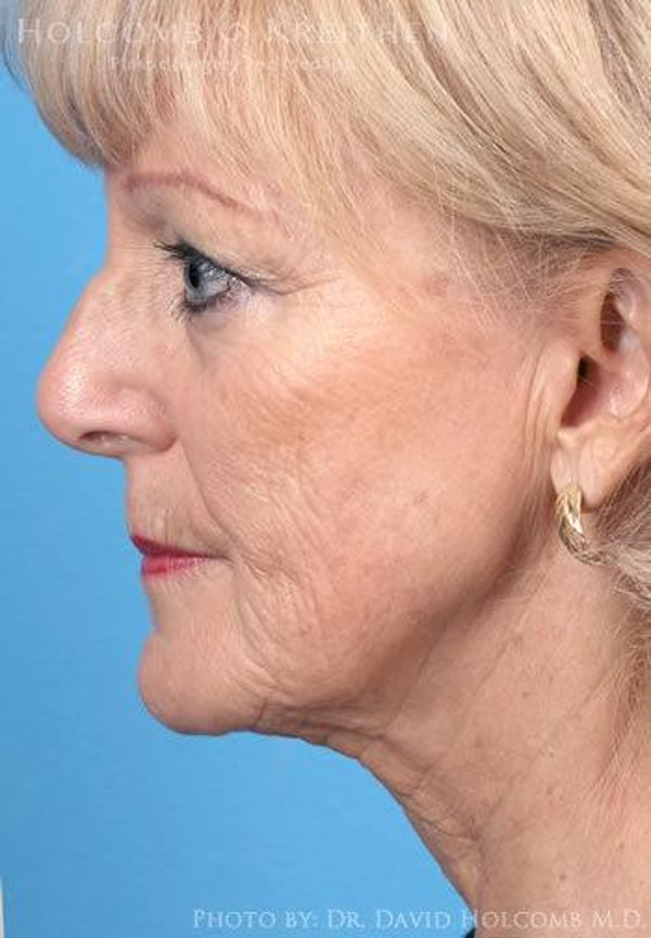 Neck Contouring Gallery - Patient 6279358 - Image 5
