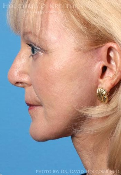 Neck Contouring Gallery - Patient 6279358 - Image 6
