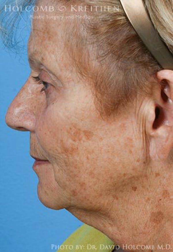 Neck Contouring Gallery - Patient 6279359 - Image 5