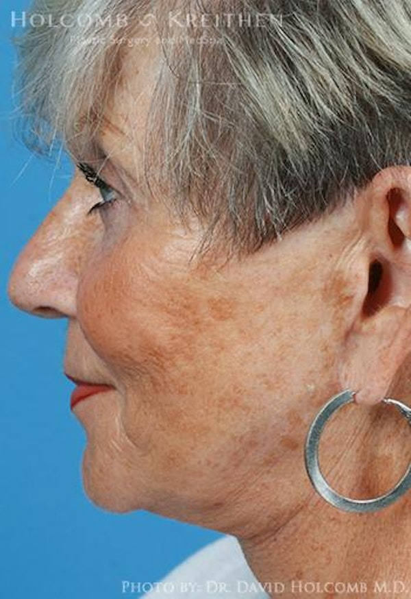 Neck Contouring Gallery - Patient 6279359 - Image 6
