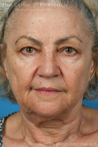 Neck Contouring Gallery - Patient 6279376 - Image 1