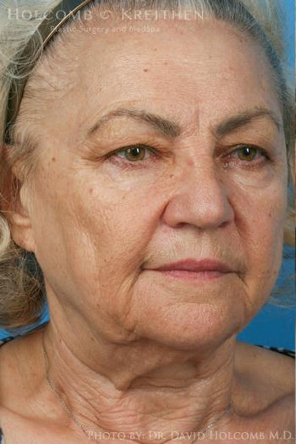Neck Contouring Gallery - Patient 6279376 - Image 3