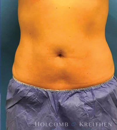 Coolsculpting Gallery - Patient 6279391 - Image 1