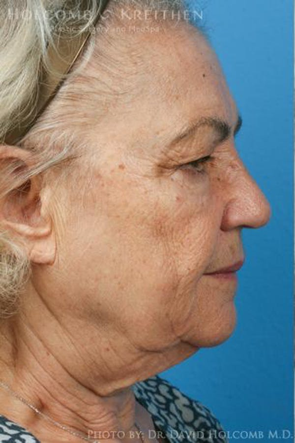 Neck Contouring Gallery - Patient 6279376 - Image 5