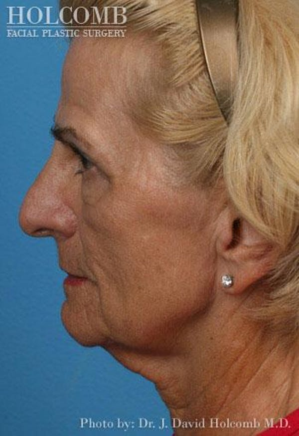 AccuLift Gallery - Patient 6279390 - Image 3