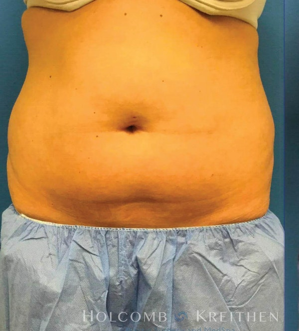 Coolsculpting Gallery - Patient 6279391 - Image 2