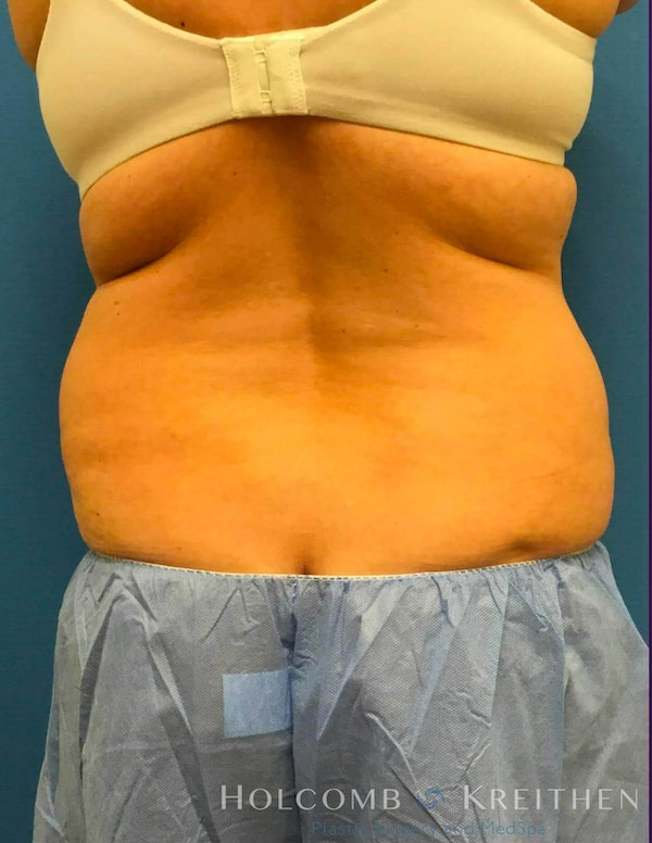 Coolsculpting Gallery - Patient 6279391 - Image 4