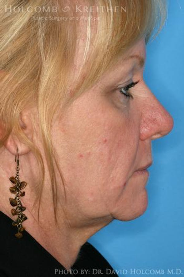 AccuLift Gallery - Patient 6279392 - Image 3