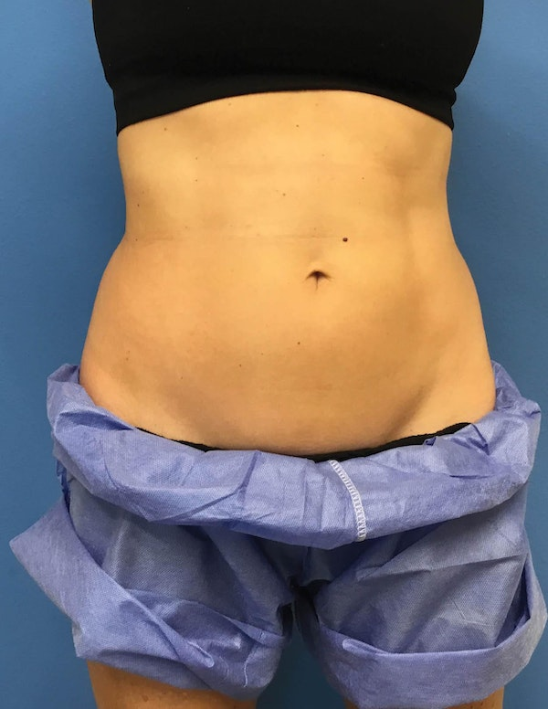 Coolsculpting Gallery - Patient 6279396 - Image 1