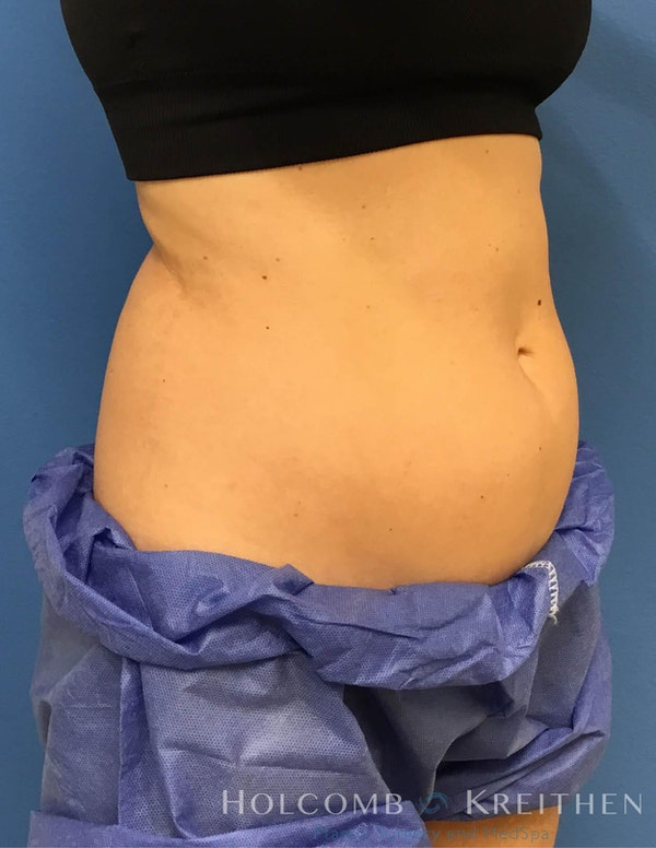 Coolsculpting Gallery - Patient 6279396 - Image 6