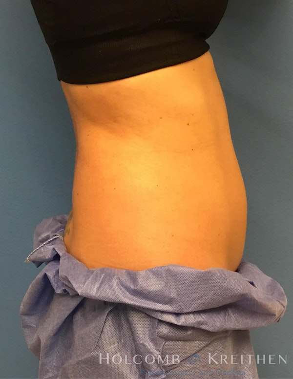 Coolsculpting Gallery - Patient 6279396 - Image 9