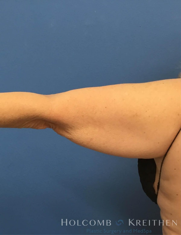 Coolsculpting Gallery - Patient 6279398 - Image 2