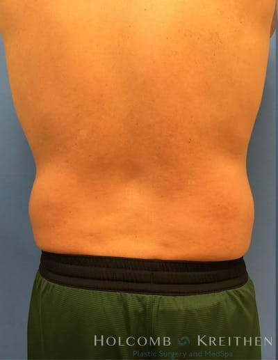 Coolsculpting Gallery - Patient 6279399 - Image 1