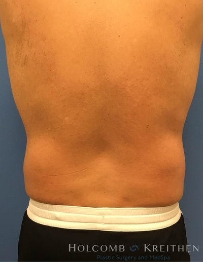 Coolsculpting Gallery - Patient 6279399 - Image 2