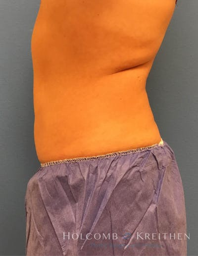 Coolsculpting Gallery - Patient 6279409 - Image 6