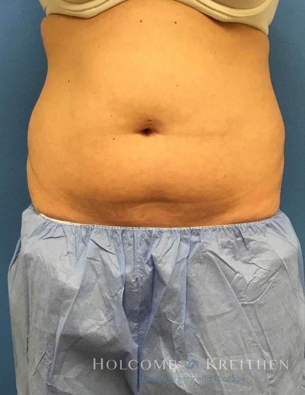 Coolsculpting Gallery - Patient 6279409 - Image 3