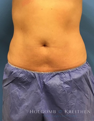 Coolsculpting Gallery - Patient 6279409 - Image 4