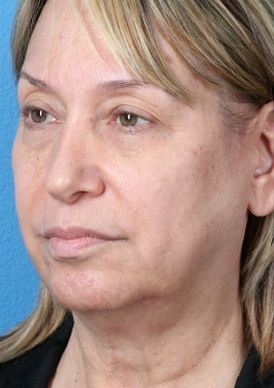 Laser/RF Assisted Facelift Gallery - Patient 6279434 - Image 1
