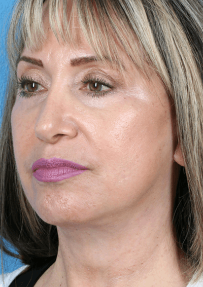 Laser/RF Assisted Facelift Gallery - Patient 6279434 - Image 2