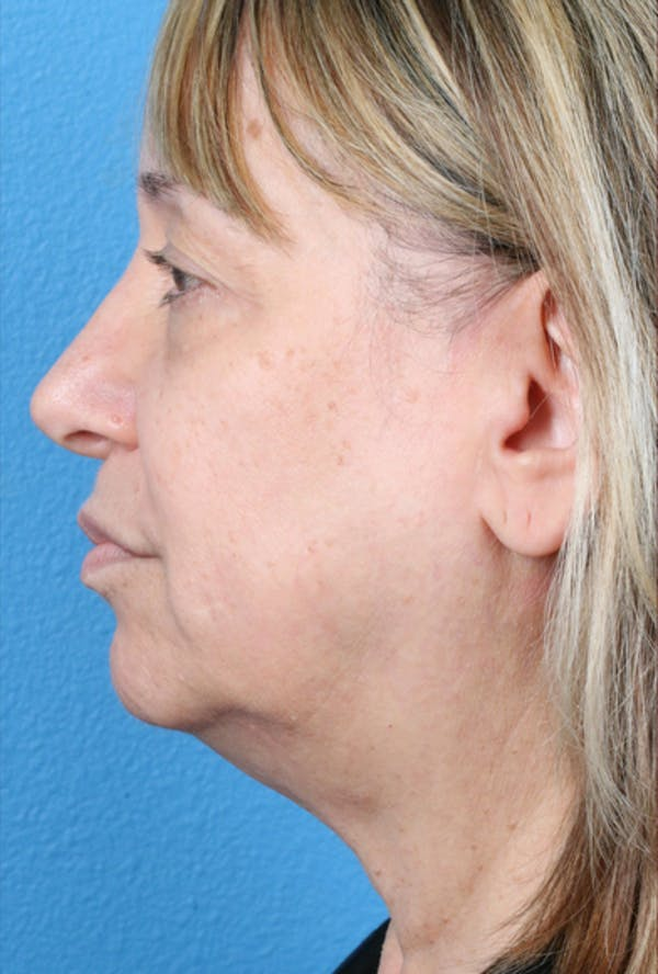 Laser/RF Assisted Facelift Gallery - Patient 6279434 - Image 3