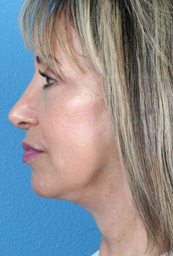 Laser/RF Assisted Facelift Gallery - Patient 6279434 - Image 4