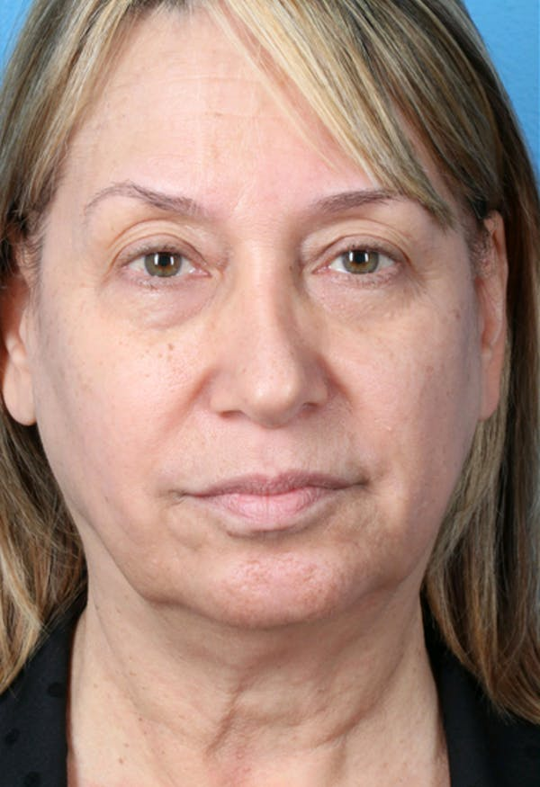 Laser/RF Assisted Facelift Gallery - Patient 6279434 - Image 5