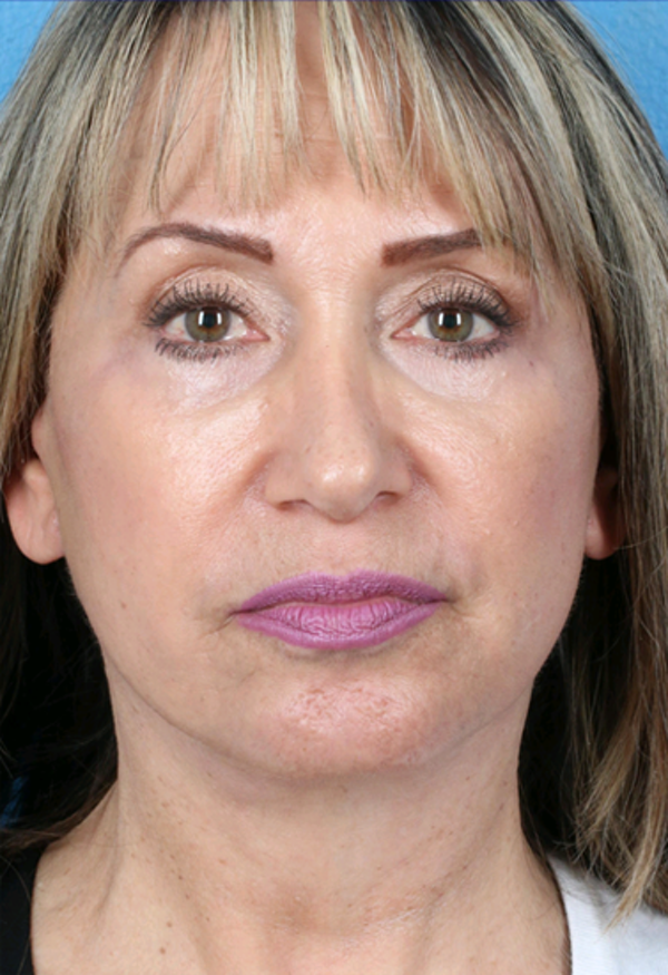 Laser/RF Assisted Facelift Gallery - Patient 6279434 - Image 6