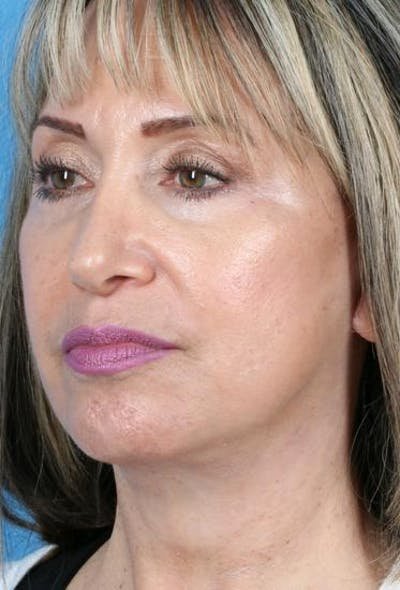 Laser/RF Assisted Facelift Gallery - Patient 6279442 - Image 4