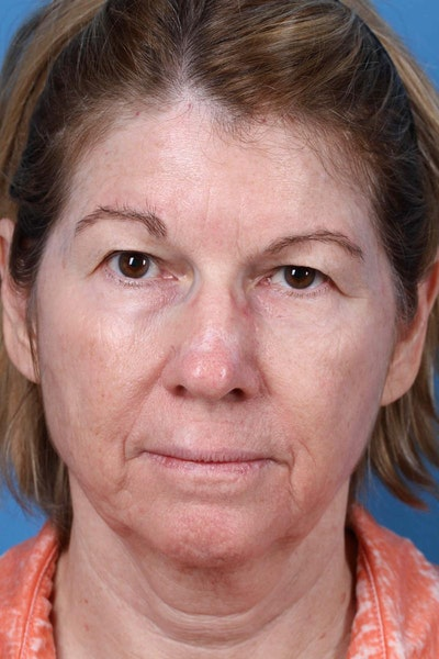 Laser/RF Assisted Facelift Gallery - Patient 6279455 - Image 1
