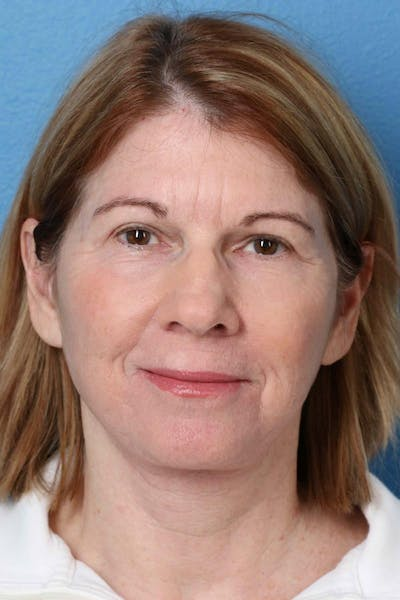 Laser/RF Assisted Facelift Gallery - Patient 6279455 - Image 2