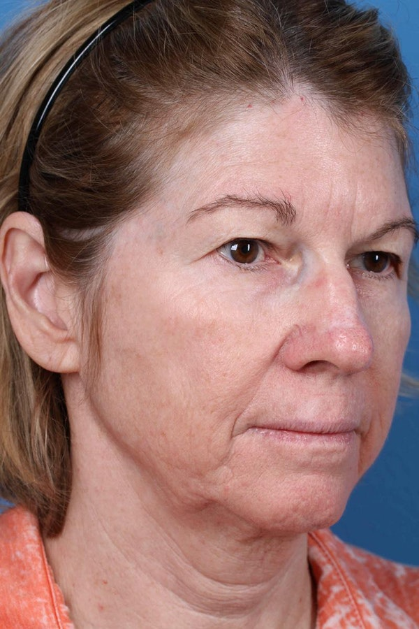 Laser/RF Assisted Facelift Gallery - Patient 6279455 - Image 3