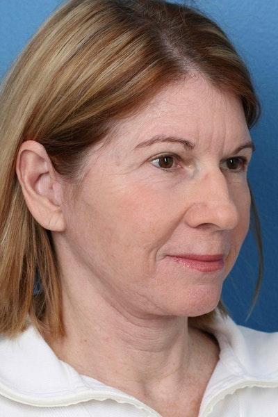 Laser/RF Assisted Facelift Gallery - Patient 6279455 - Image 4