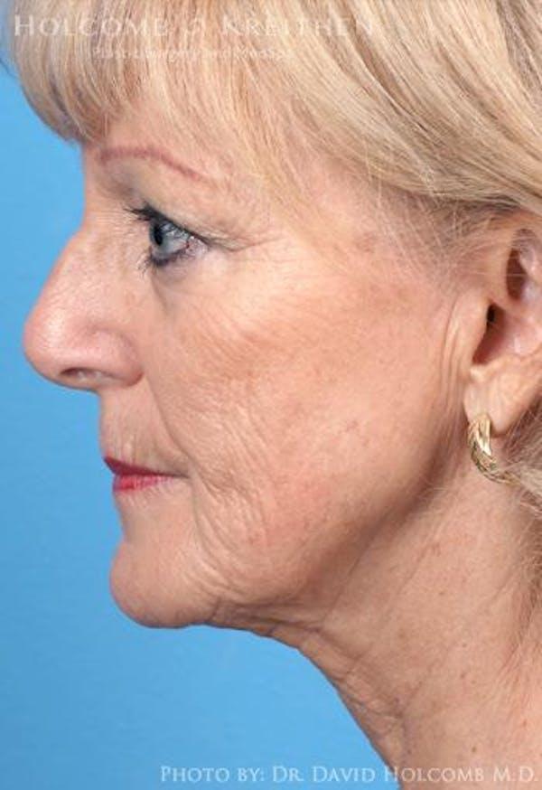 TRL Laser Skin Resurfacing Gallery - Patient 6279448 - Image 5