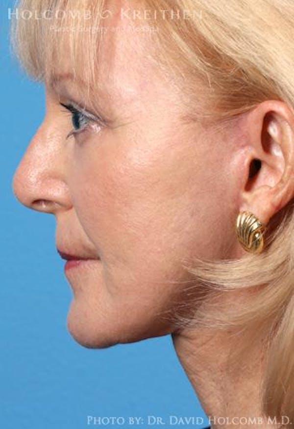 TRL Laser Skin Resurfacing Gallery - Patient 6279448 - Image 6