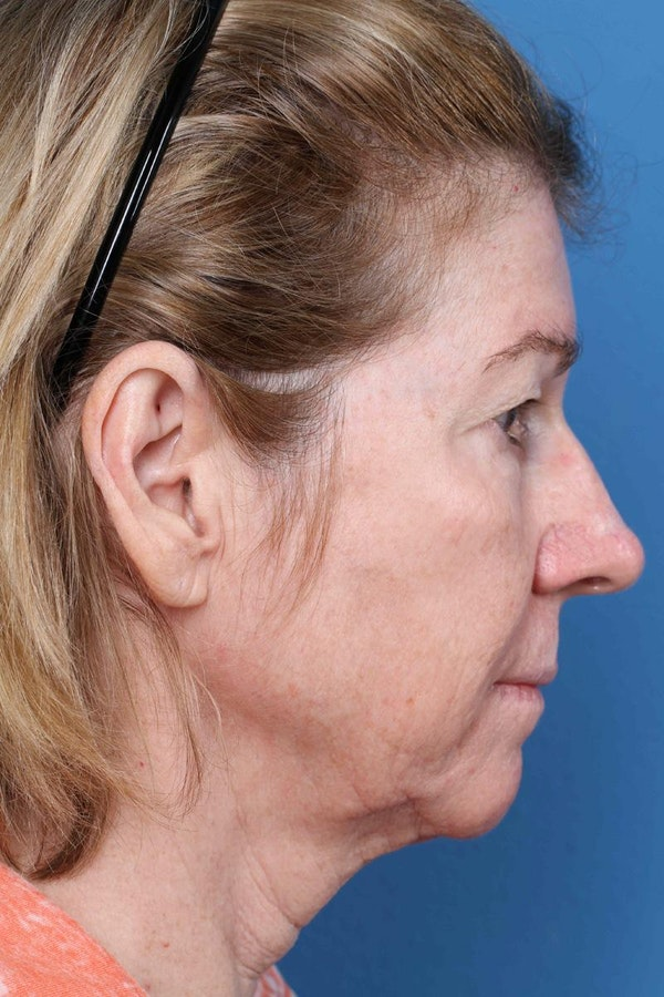 Laser/RF Assisted Facelift Gallery - Patient 6279455 - Image 5