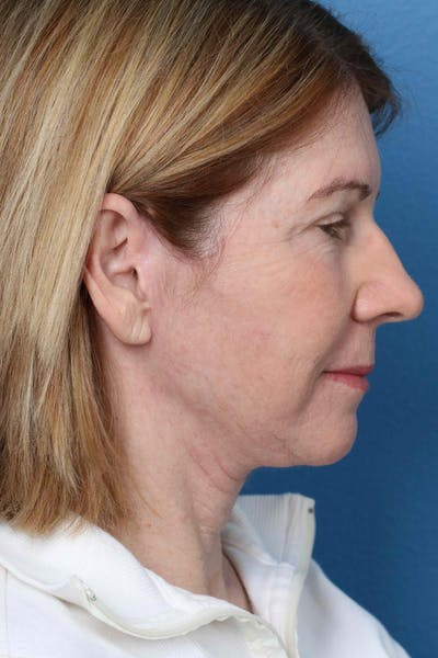 Laser/RF Assisted Facelift Gallery - Patient 6279455 - Image 6