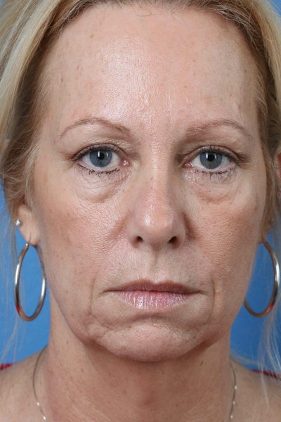 Laser/RF Assisted Facelift Gallery - Patient 6279462 - Image 1