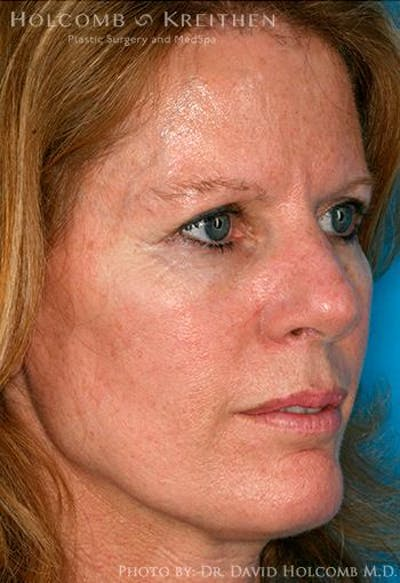 TRL Laser Skin Resurfacing Gallery - Patient 6279457 - Image 6