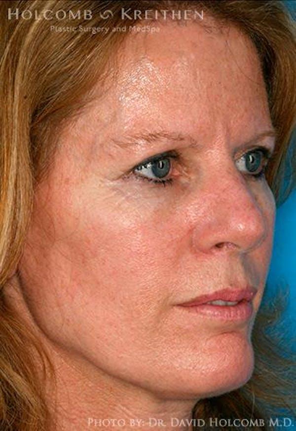 TRL Laser Skin Resurfacing Gallery - Patient 6279457 - Image 1