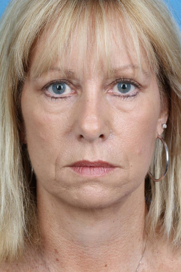 Laser/RF Assisted Facelift Gallery - Patient 6279462 - Image 2