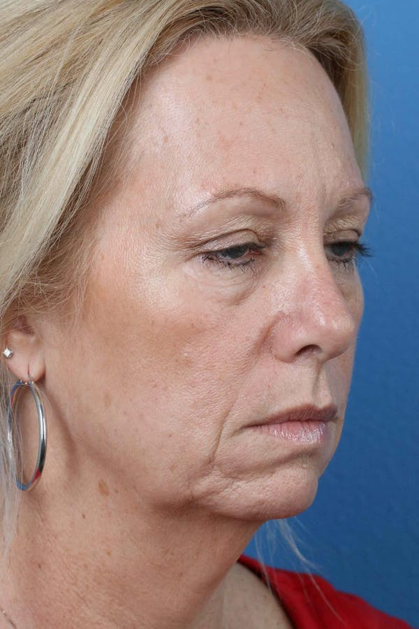 Laser/RF Assisted Facelift Gallery - Patient 6279462 - Image 3