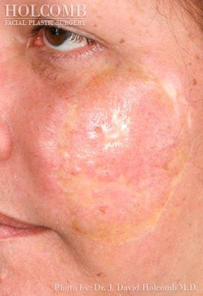 TRL Laser Skin Resurfacing Gallery - Patient 6279460 - Image 1