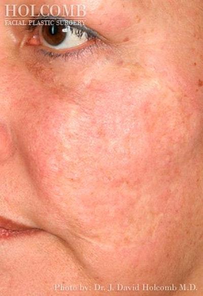 TRL Laser Skin Resurfacing Gallery - Patient 6279460 - Image 2
