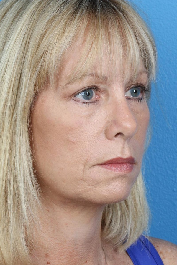 Laser/RF Assisted Facelift Gallery - Patient 6279462 - Image 4