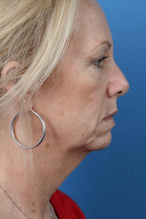 Laser/RF Assisted Facelift Gallery - Patient 6279462 - Image 5