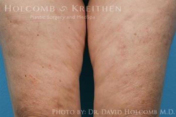 TRL Laser Skin Resurfacing Gallery - Patient 6279461 - Image 2