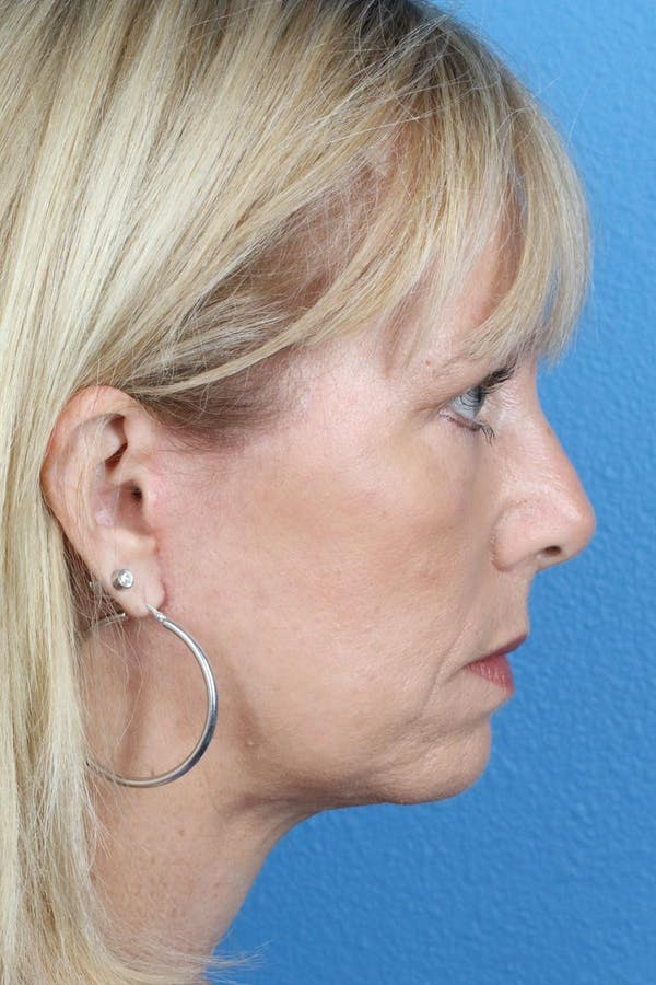 Laser/RF Assisted Facelift Gallery - Patient 6279462 - Image 6