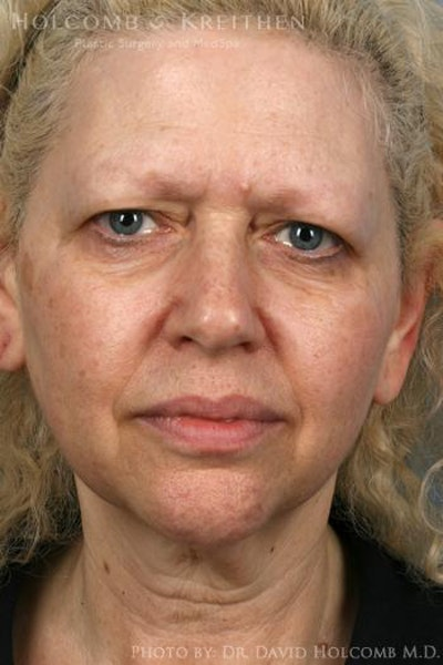 Laser/RF Assisted Facelift Gallery - Patient 6279464 - Image 1