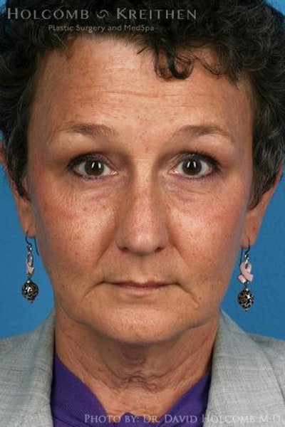 Laser/RF Assisted Facelift Gallery - Patient 6279466 - Image 1